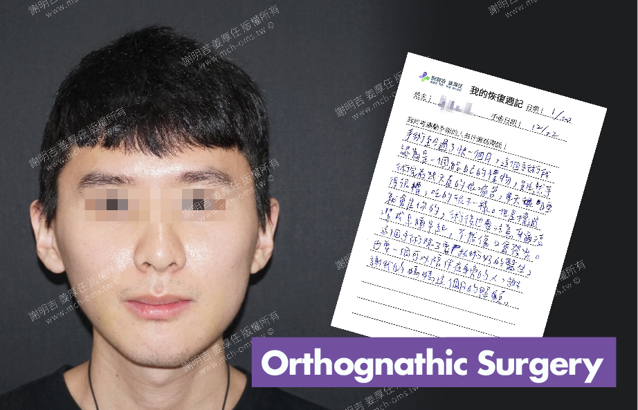 2018-01-20回診病患 3D Navigation Orthognathic Surgery