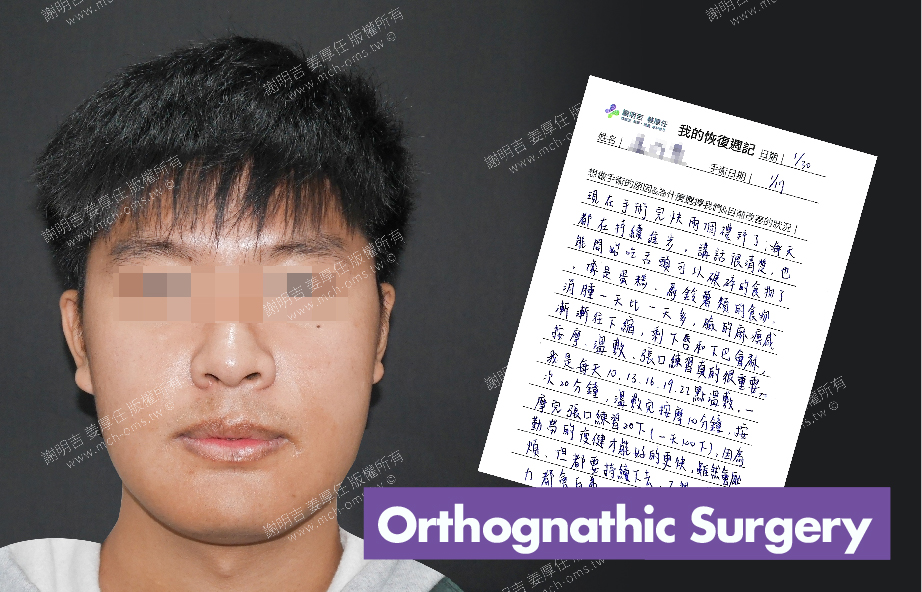 2018-01-30回診病患 3D Navigation Orthognathic Surgery