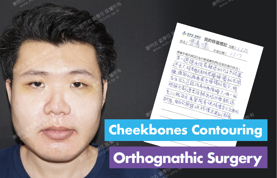 2018-01-31回診病患 3D Navigation Orthognathic Surgery