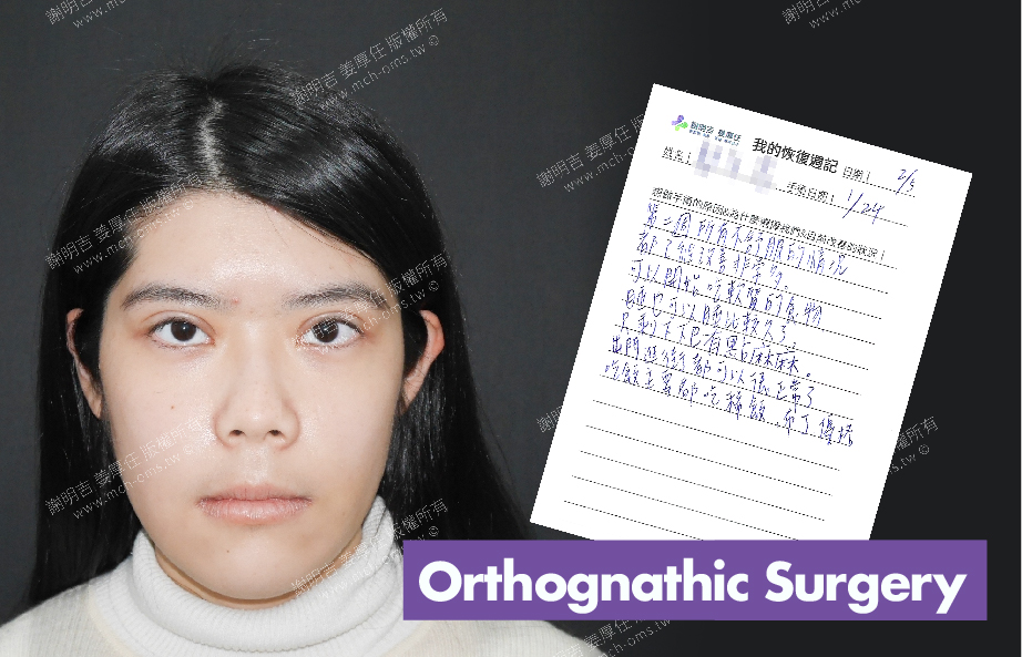2018-02-05回診病患 3D Navigation Orthognathic Surgery