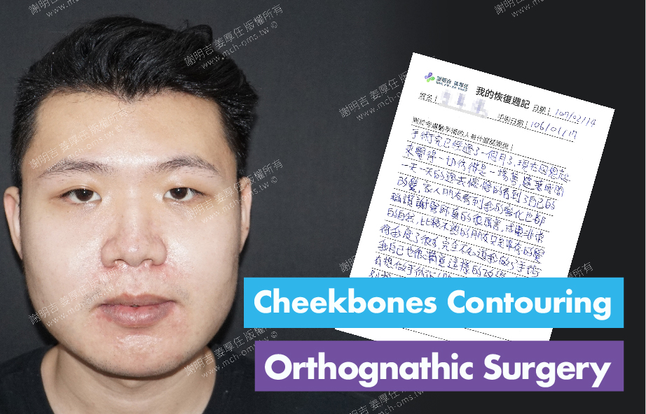 2018-02-14回診病患 3D Navigation Orthognathic Surgery 3D Navigation Cheekbones Contouring Surgery