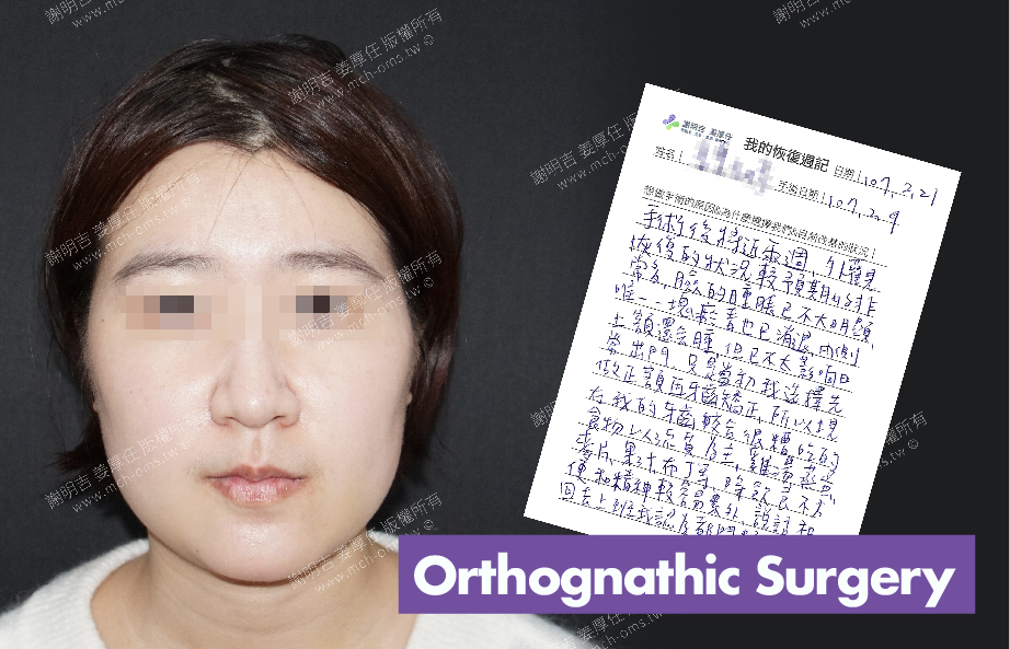 2018-02-21 3D Orthognathic Surgery