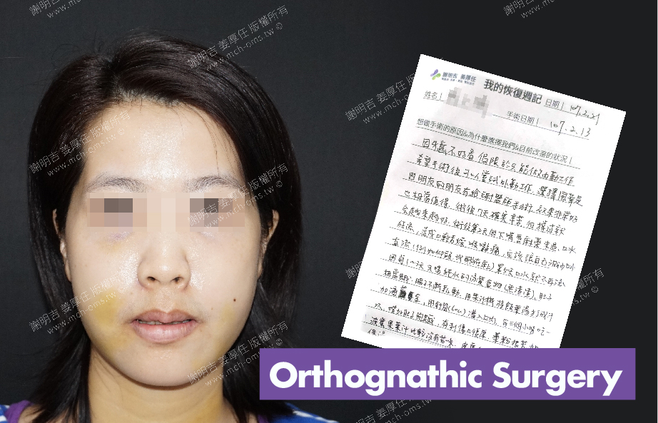 2018-02-21回診病患 3D Navigation Orthognathic Surgery