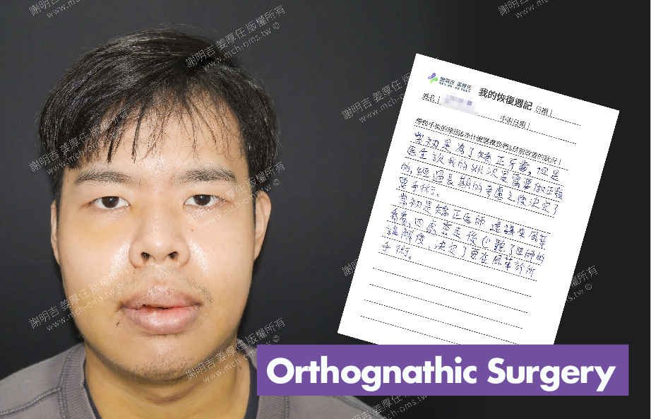 2018-03-09回診病患 3D Navigation Orthognathic Surgery