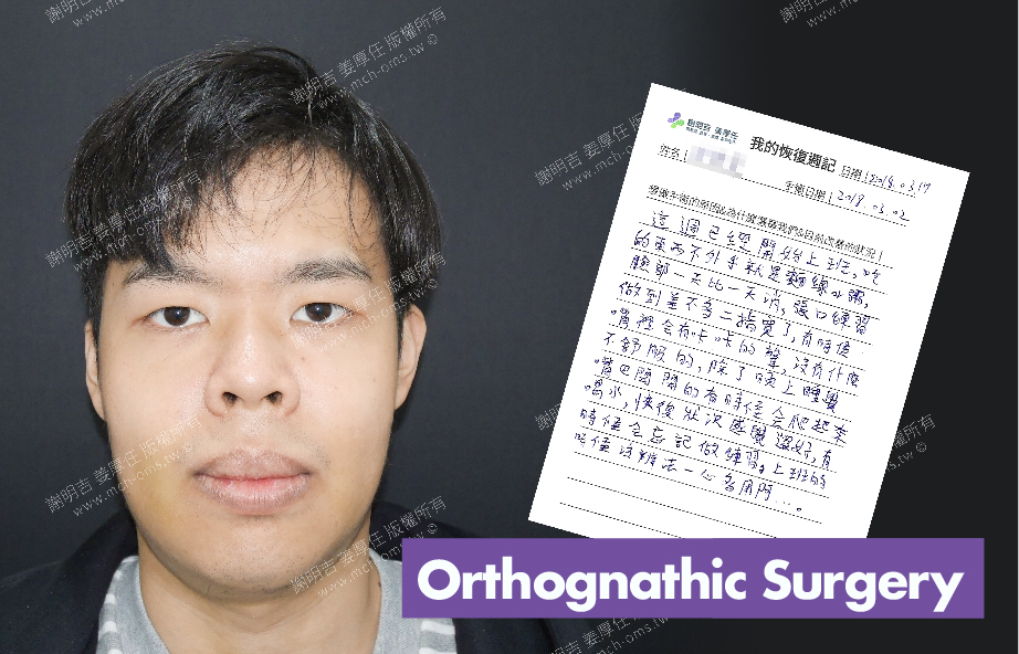 2018-03-17 3D Orthognathic Surgery