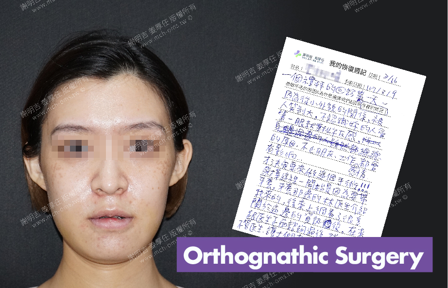 2018-03-16回診病患 3D Navigation Orthognathic Surgery