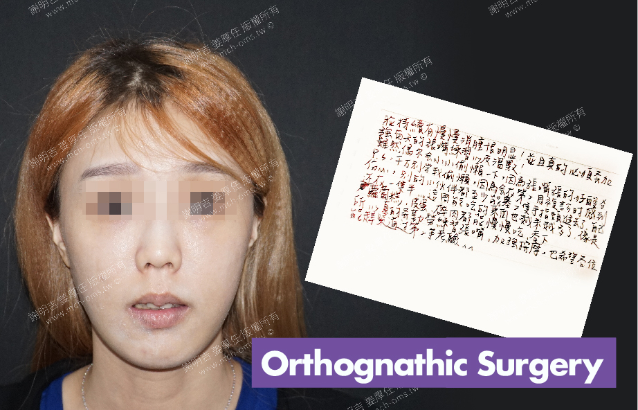 2018-03-30 3D Orthognathic Surgery