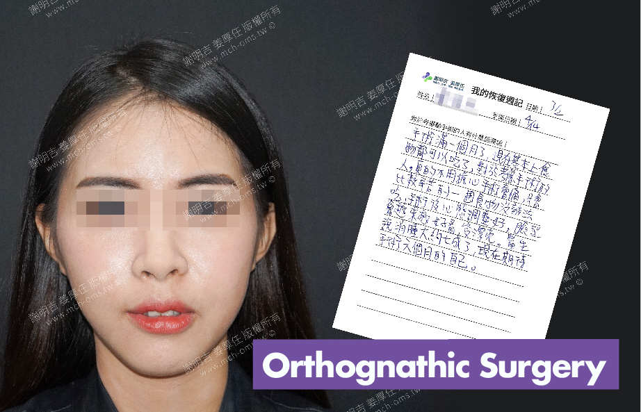 2018-04-14 3D Orthognathic Surgery
