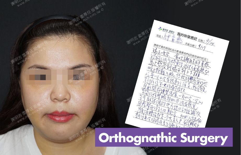 2018-04-24 3D Orthognathic Surgery