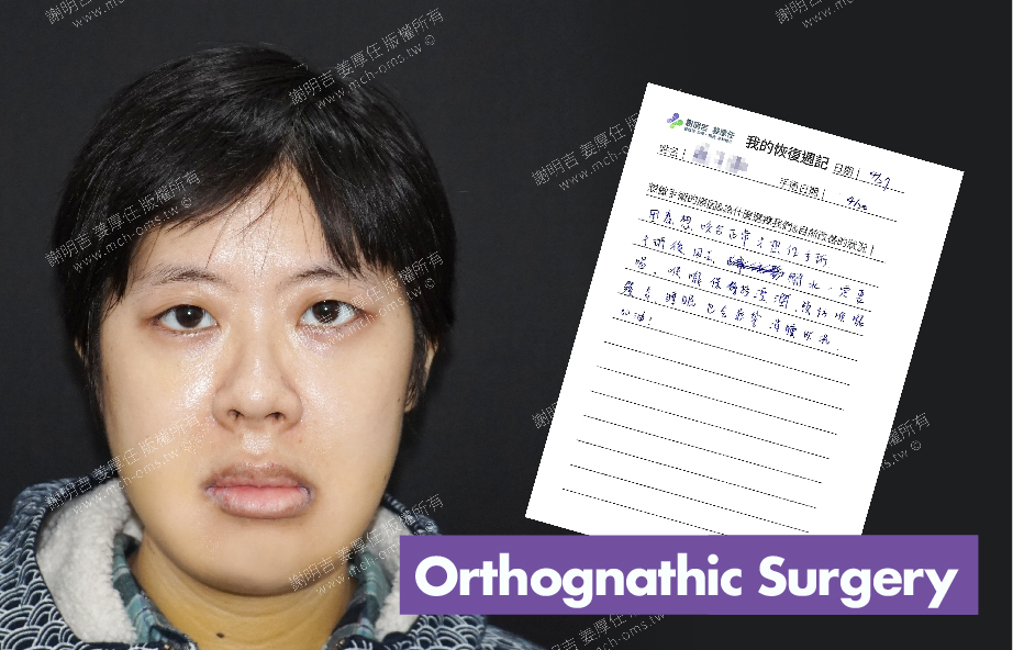 2018-04-27 3D Orthognathic Surgery