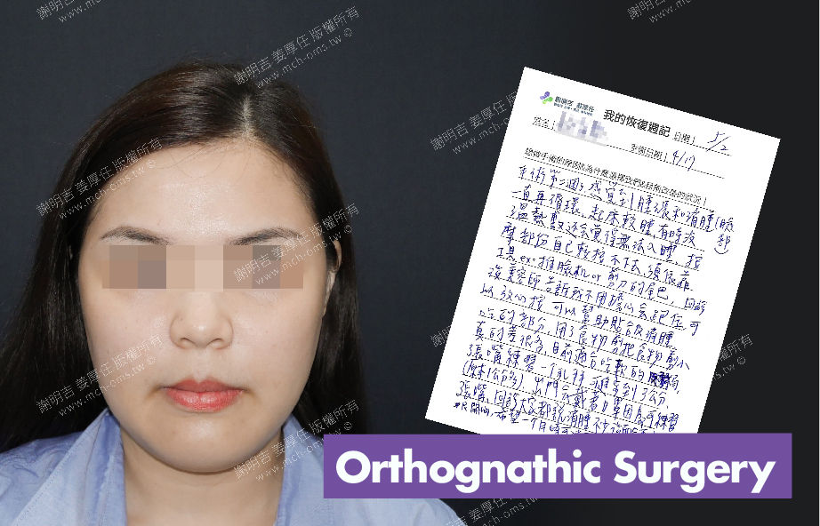 2018-05-02 3D Orthognathic Surgery