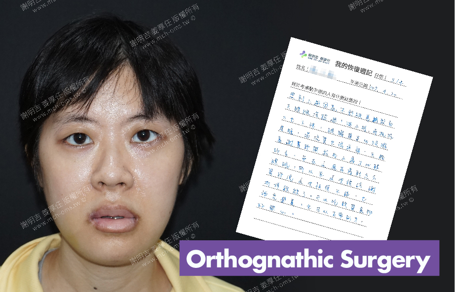 2018-05-04 3D Orthognathic Surgery