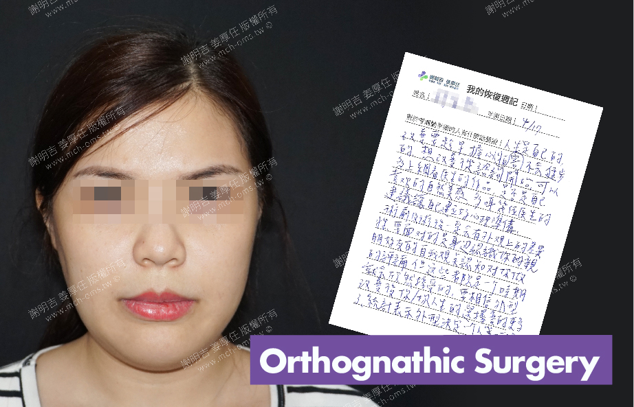 2018-05-08 3D Orthognathic Surgery