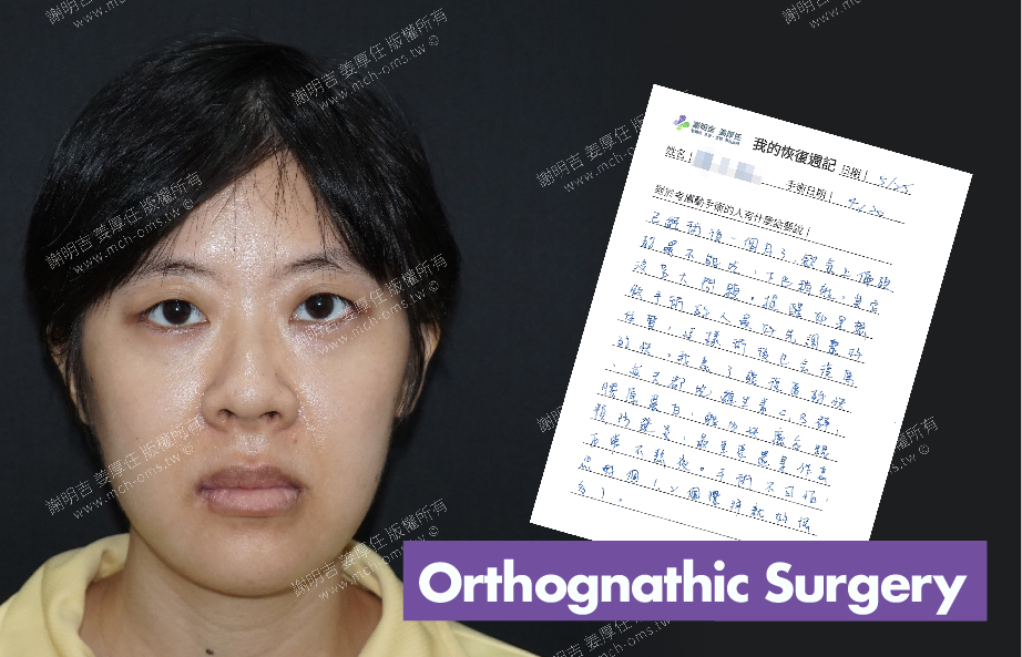 2018-05-25 3D Orthognathic Surgery