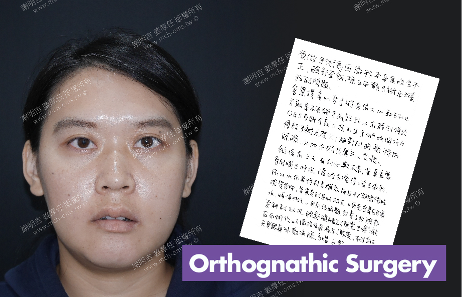 2018-06-23 3D Orthognathic Surgery