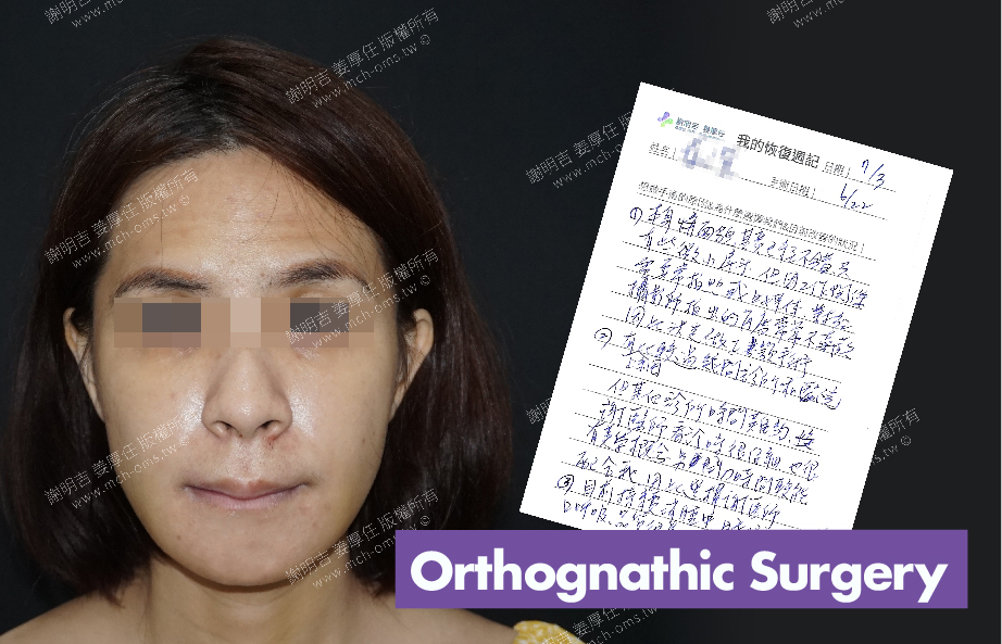 2018-07-03 3D Orthognathic Surgery