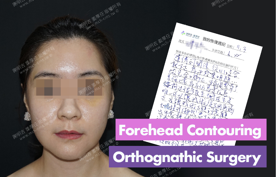 2018-07-03 3D Forehead Contouring Surgery 3D Orthognathic Surgery