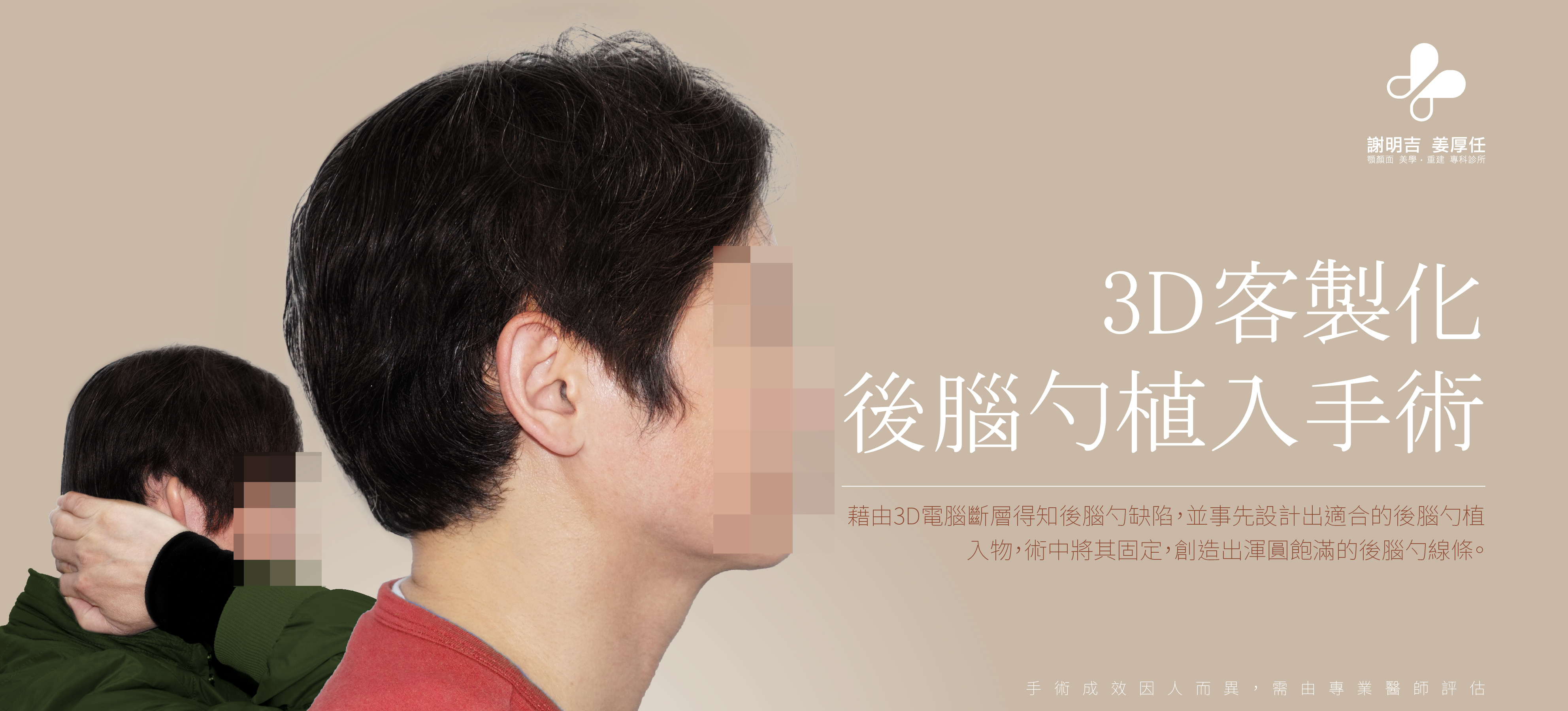 【3D Occiput Augmentation】Flat Back of Head 3D Occiput Augmentation