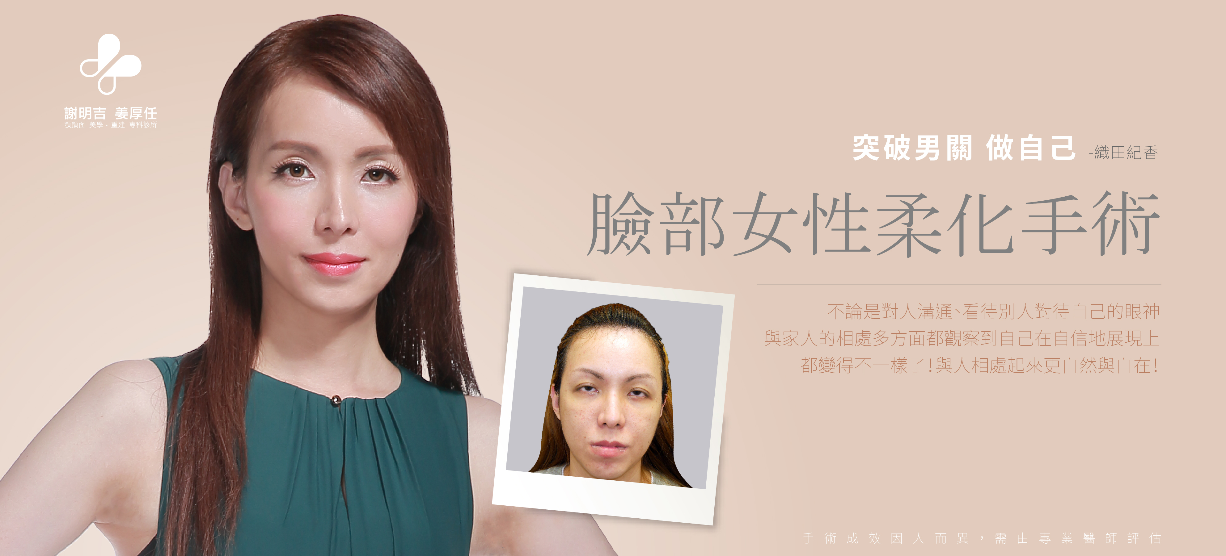 【Facial Feminization Surgery】3D Custom-Made Forehead Contouring +3D Custom-Made Orthognathic Surgery Norika
