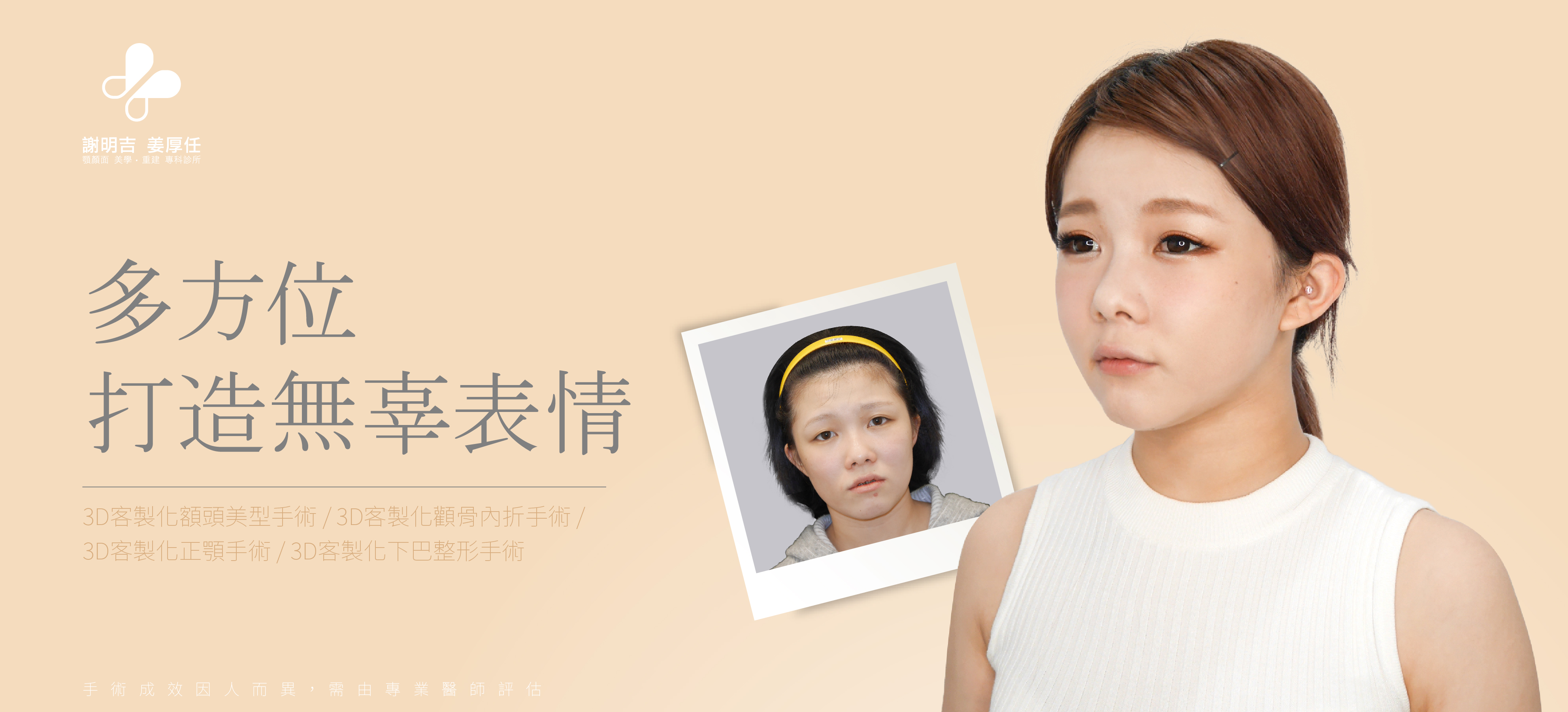 【3D Orthognathic Surgery】Moon face, under bite combined with concaved mid-face. Phoebe