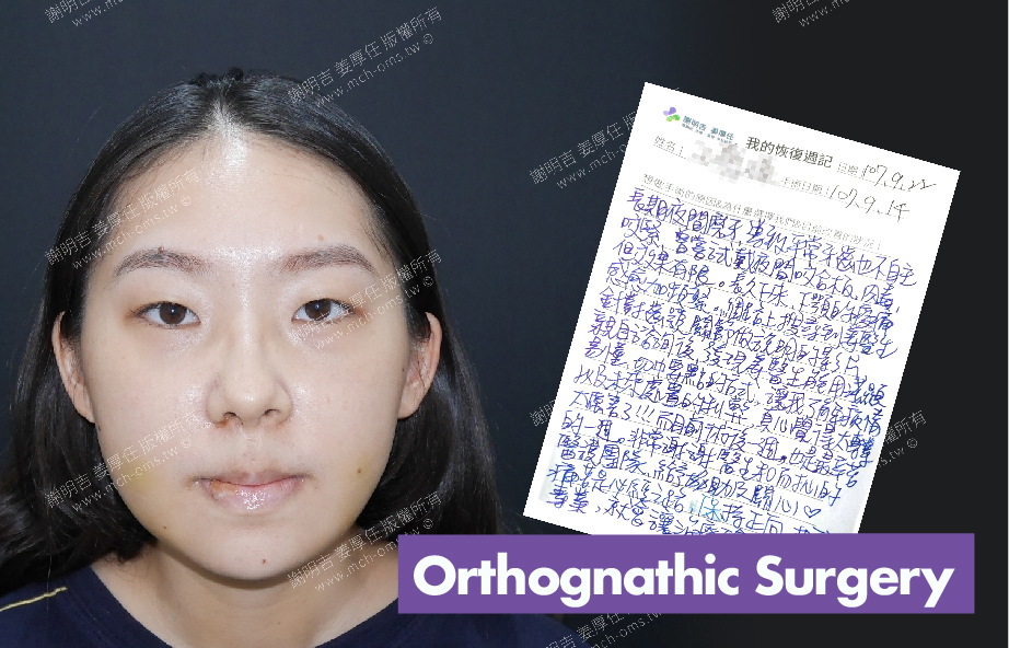 2018-09-22 3D Orthognathic Surgery