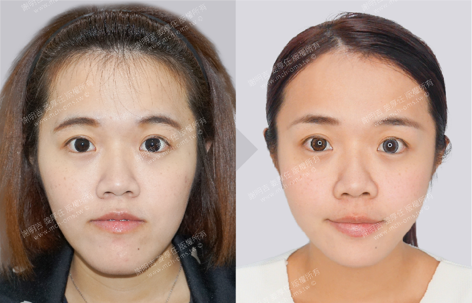 3D Orthognathic Surgery 3D Chin Implant Surgery / Genioplasty