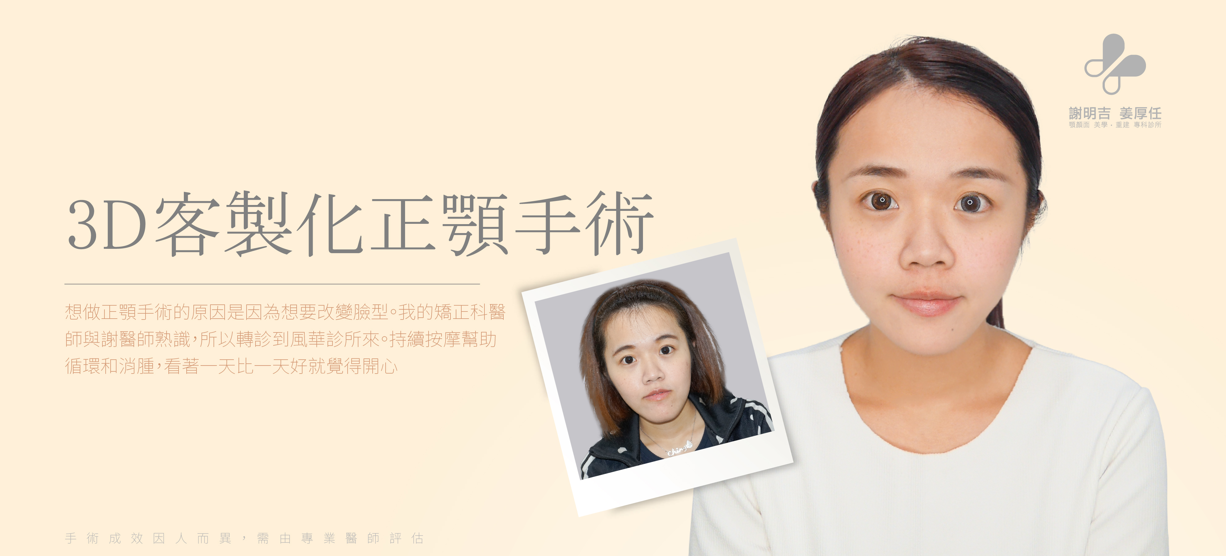 【案例分享-3D Custom-Made Orthognathic Surgery】月亮、戽斗臉型 Case56