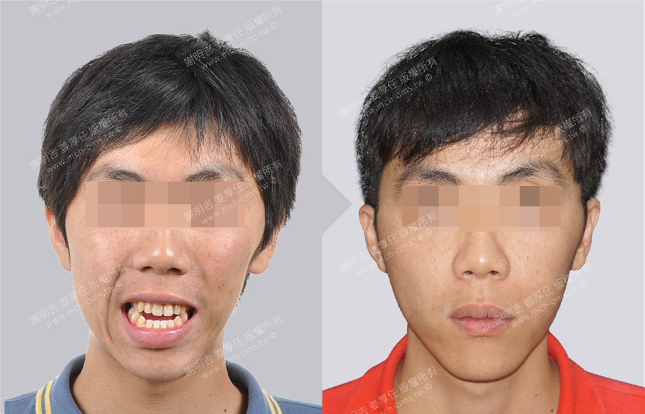 3D Custom-Made Orthognathic Surgery 3D Custom-Made Chin Implant Surgery / Genioplasty 3D Custom-Made Lower Jaw Implant Surgery