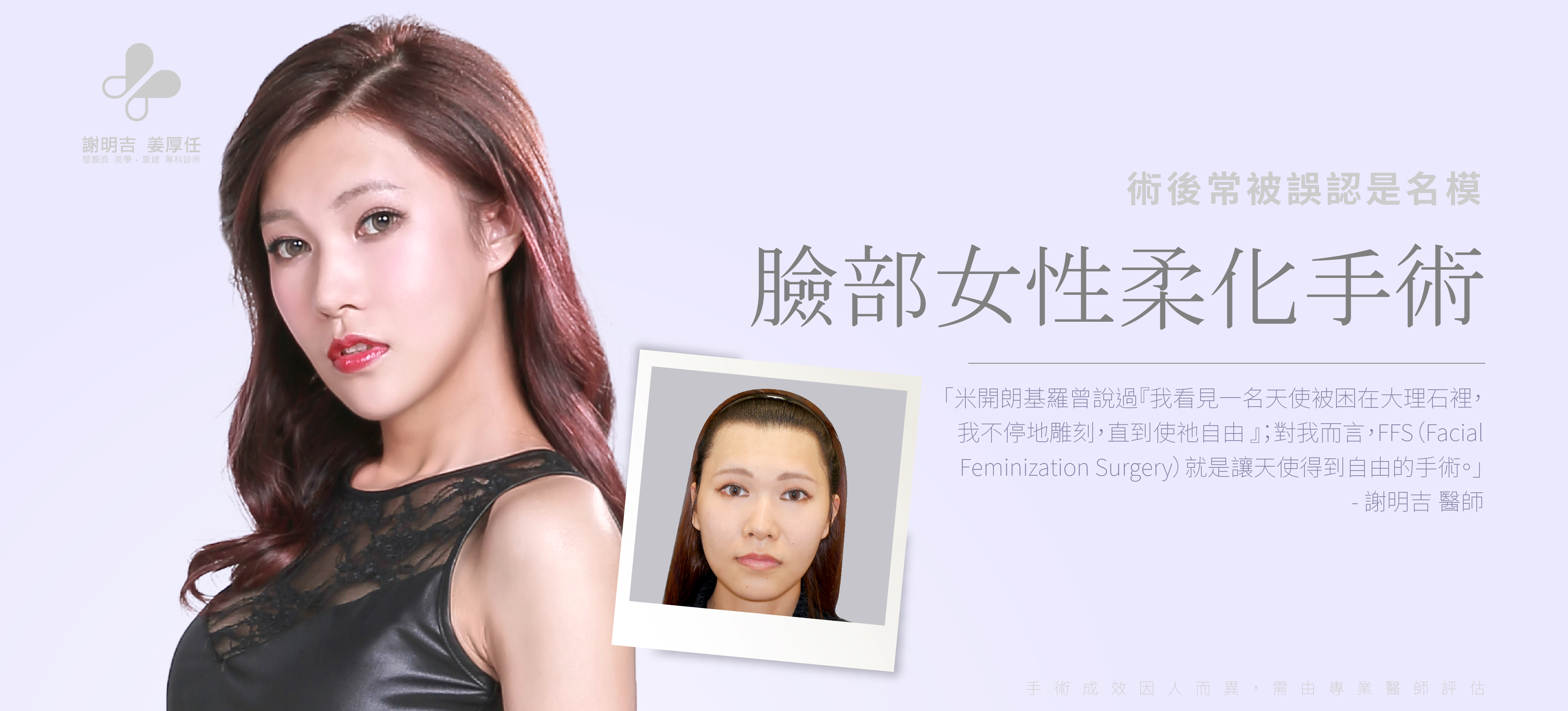 【Facial Feminization Surgery】 Carrie