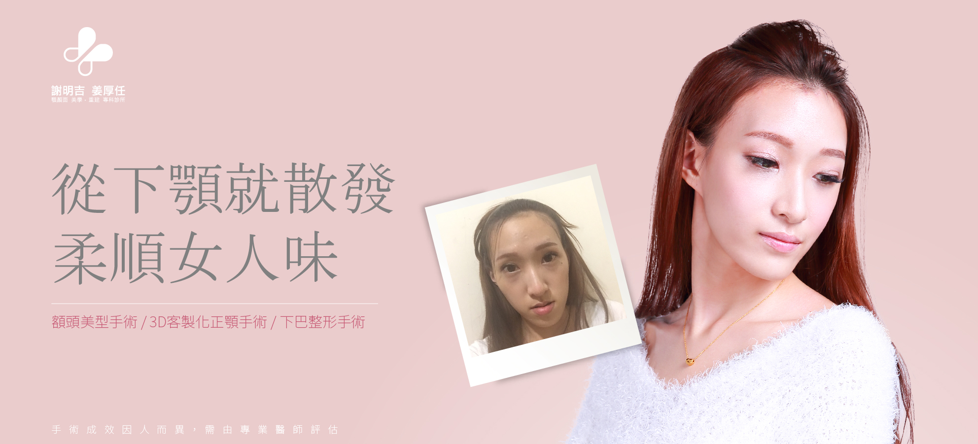 【3D Forehead Contouring Surgery】髮際線前移 Kailey